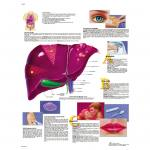Hepatitis - Poster