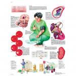 Bluthochdruck - Poster
