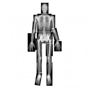 Der Mensch - Röntgenbilder