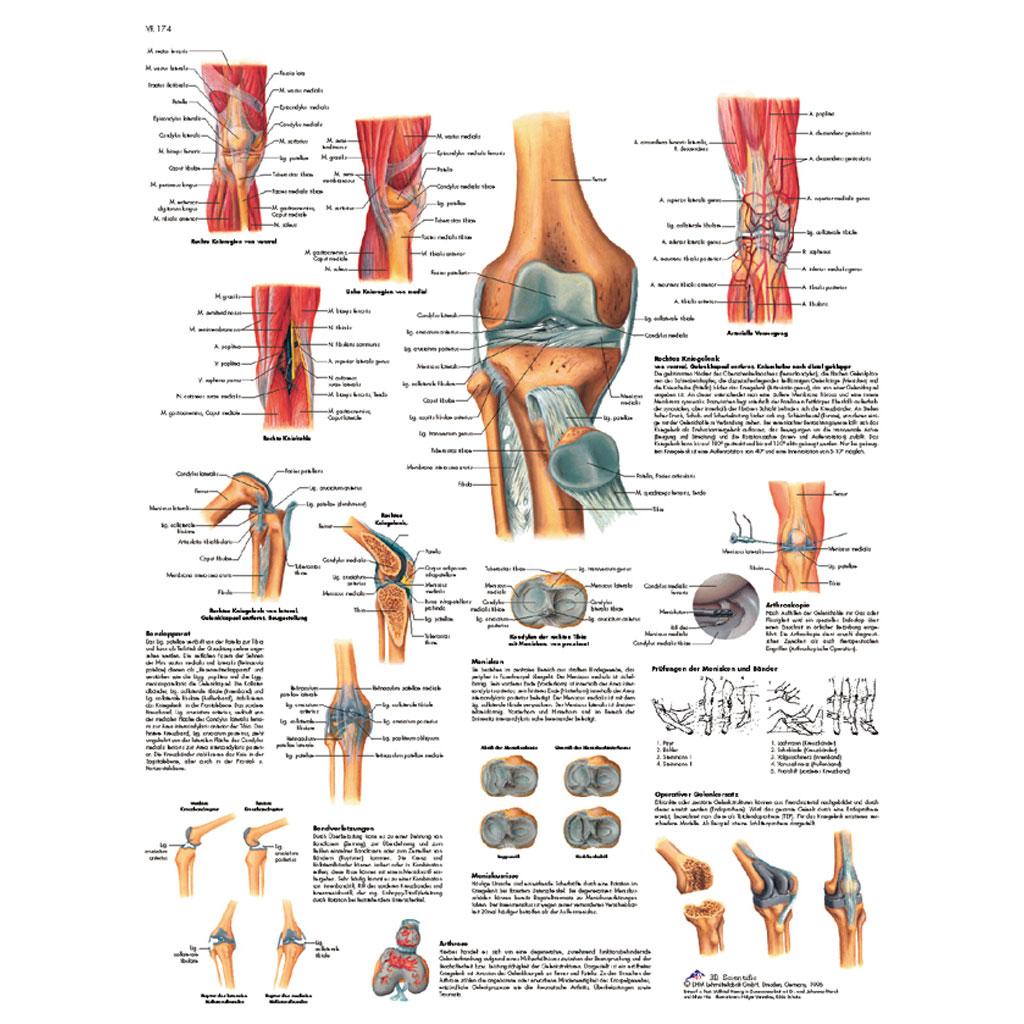 Das Kniegelenk - Poster laminiert-W-21086L
