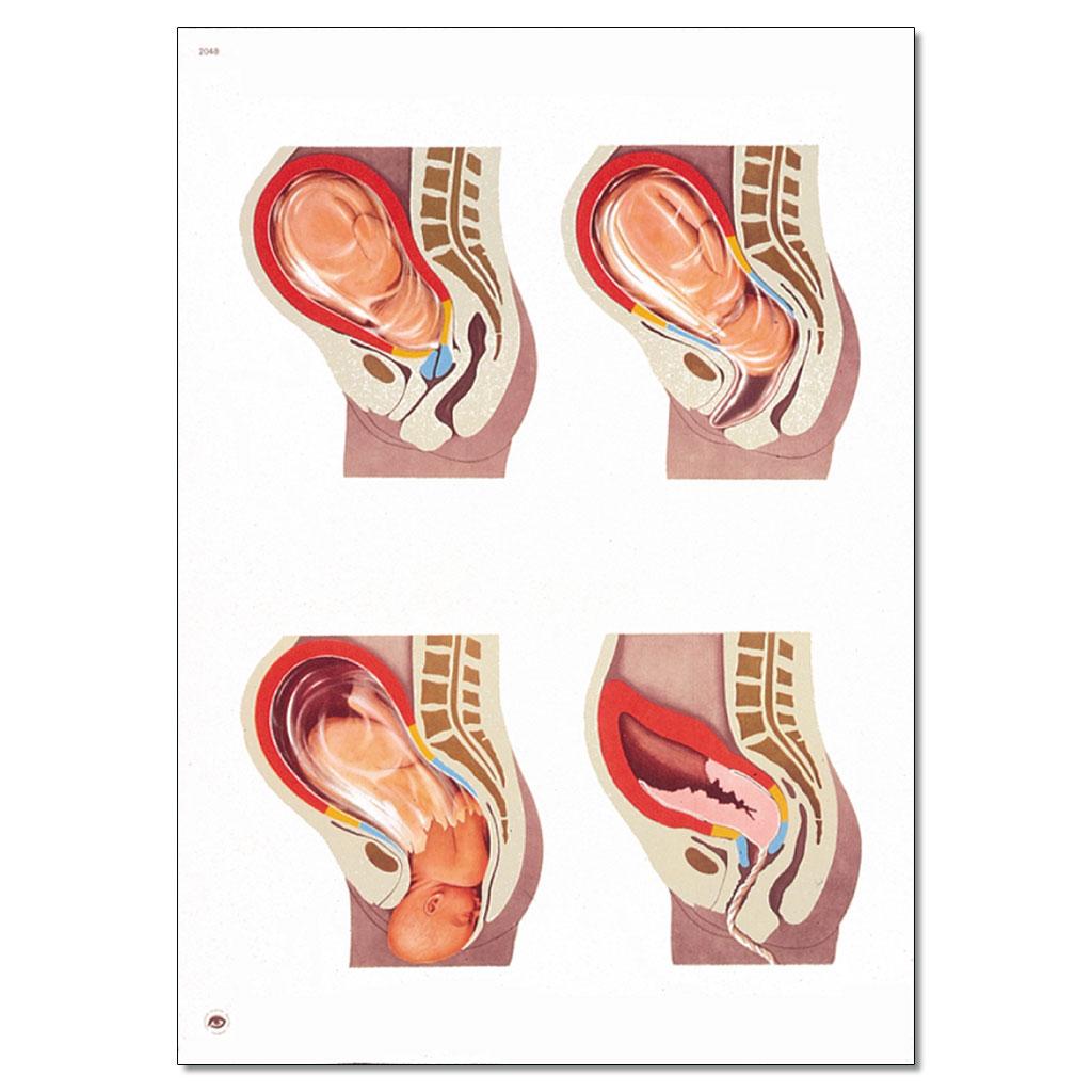 Geburtsvorgang - ohne Holzbestäbung-W-21159U