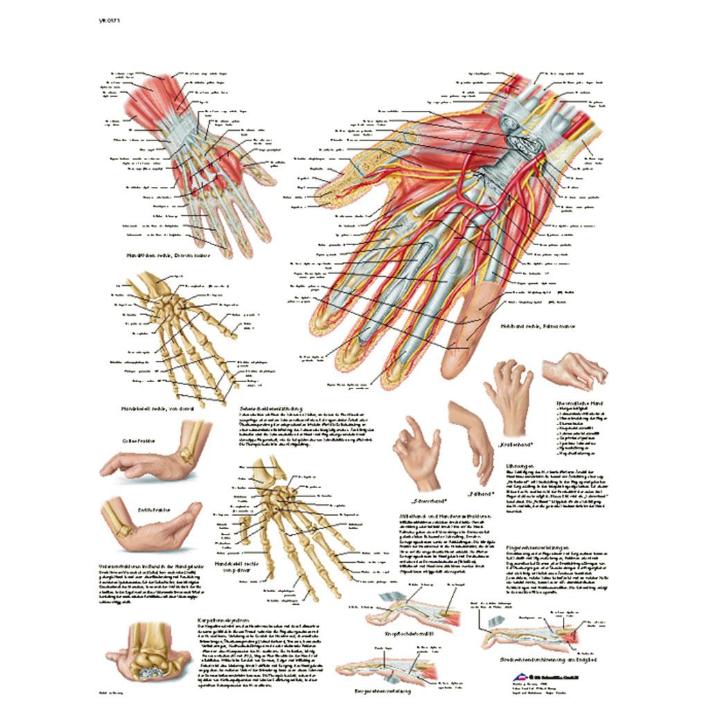 Hand und Handgelenk - Anatomie und Pathologie - Poster-W-21854UB