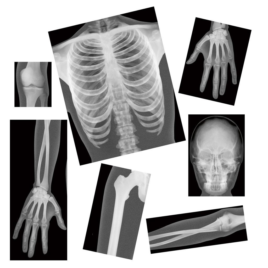 Der Mensch - Röntgenbilder - hier online im WL-Versand kaufen