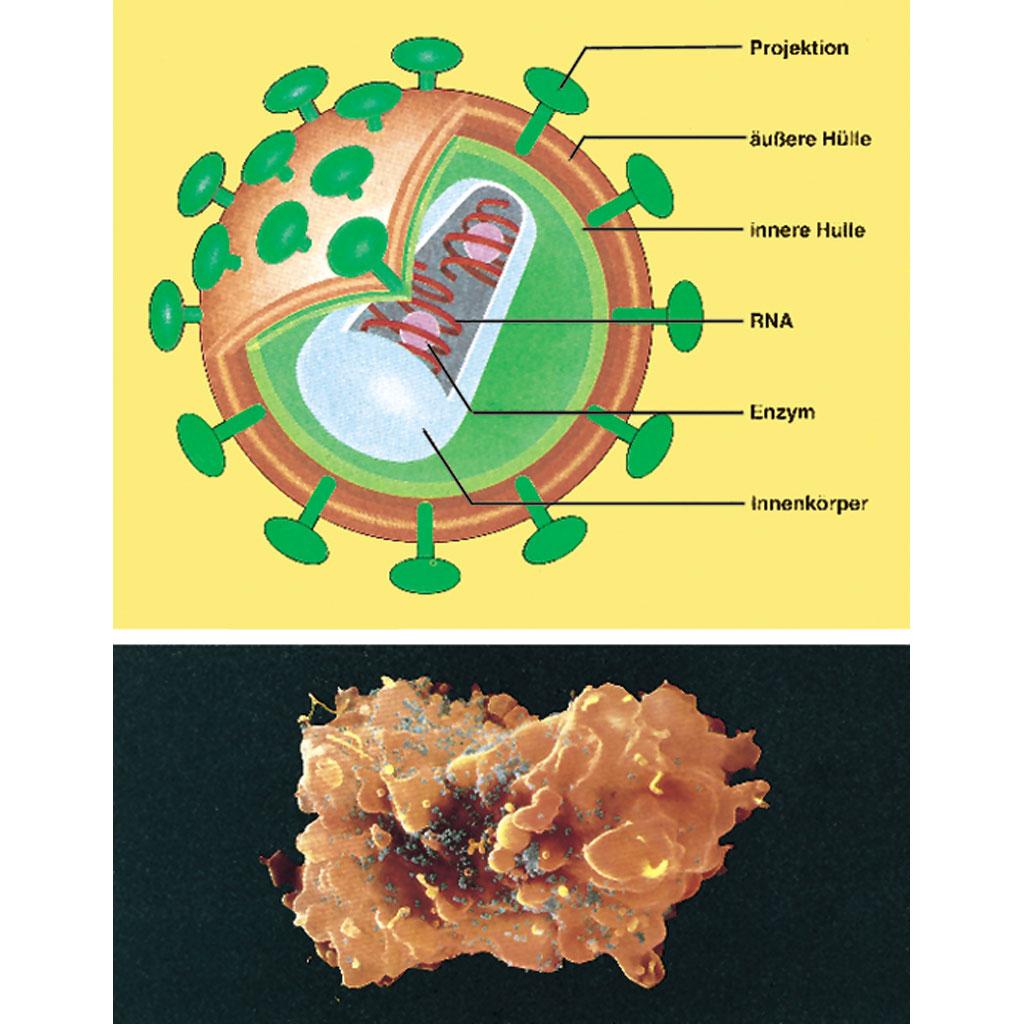 AIDS - Immunologie